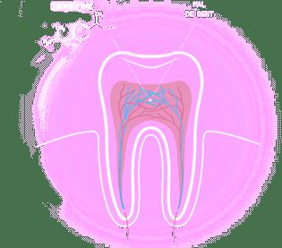 maux-de-dent-1