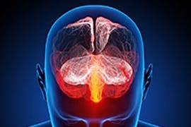 ocular migraine icon