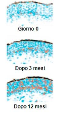 Imedeen aumenta la concentrazione di collegane e migliora l'aspetto della pelle riducendo le rughe