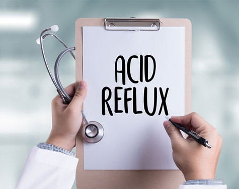 Everything You Need to Know About Acid Reflux (and How to Avoid It)
