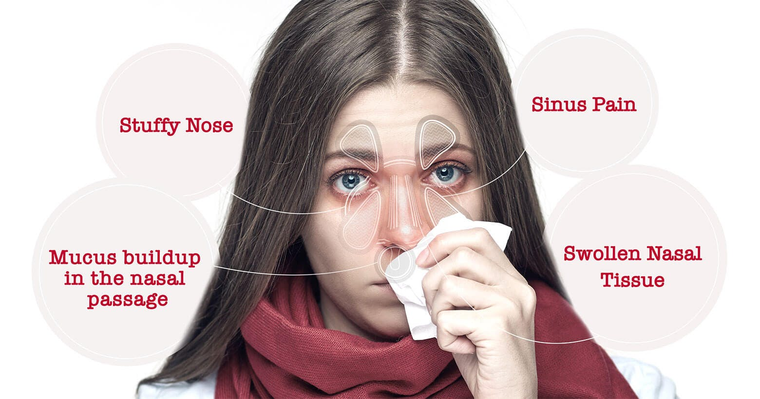 Woman with nasal congestion symptoms