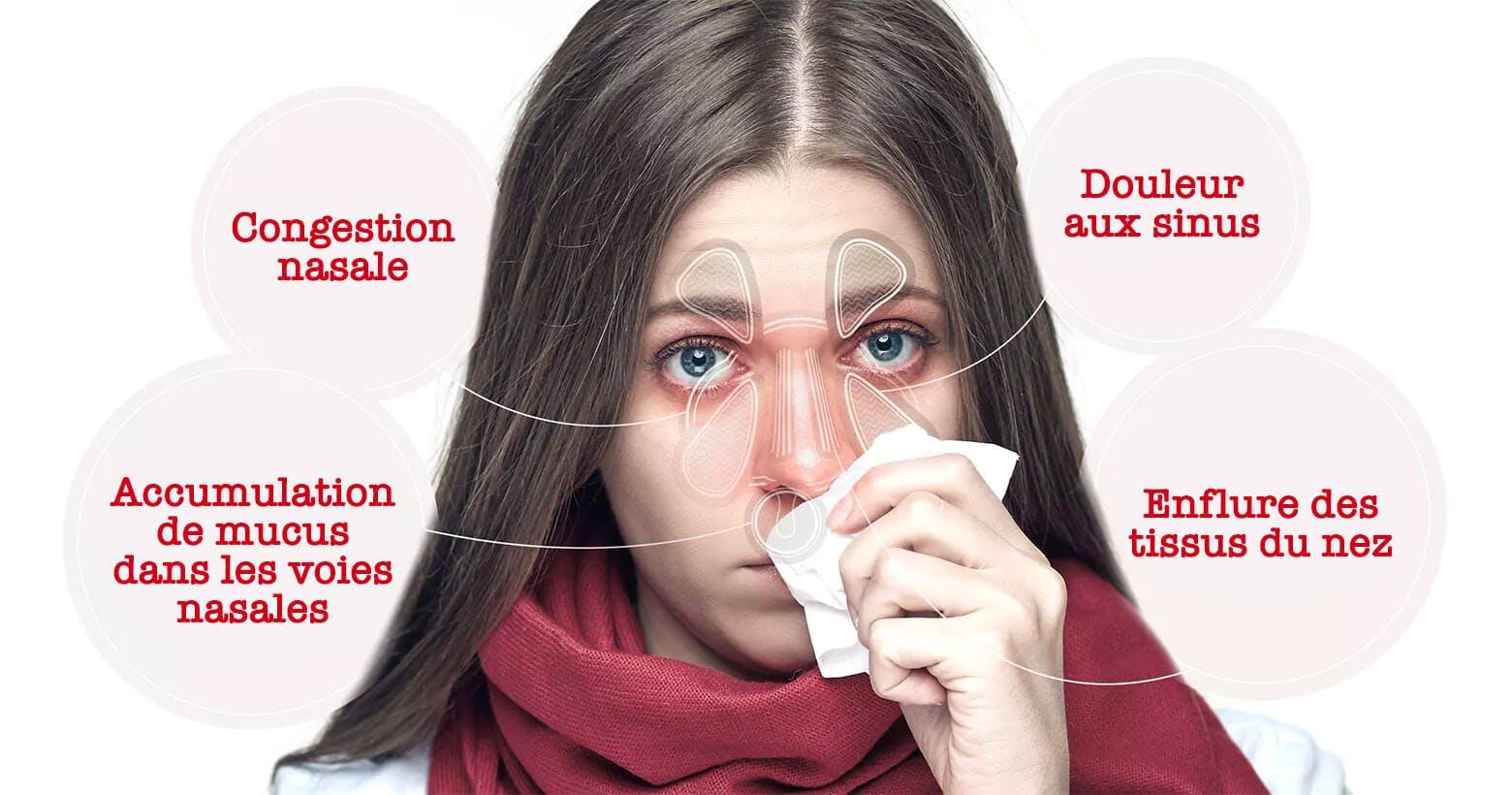 Femme atteinte de symptômes de la congestion nasale