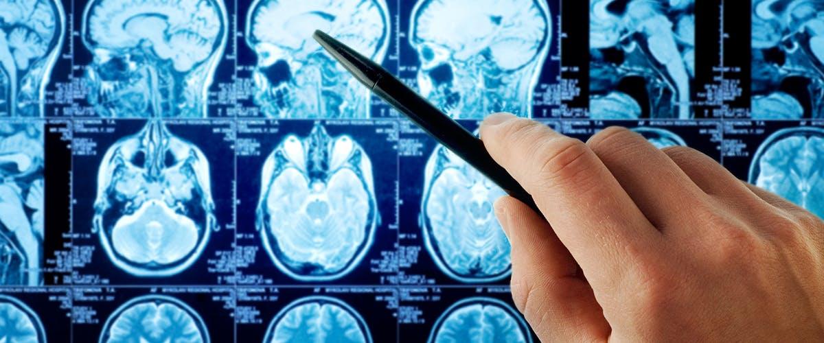 Cluster headache causes