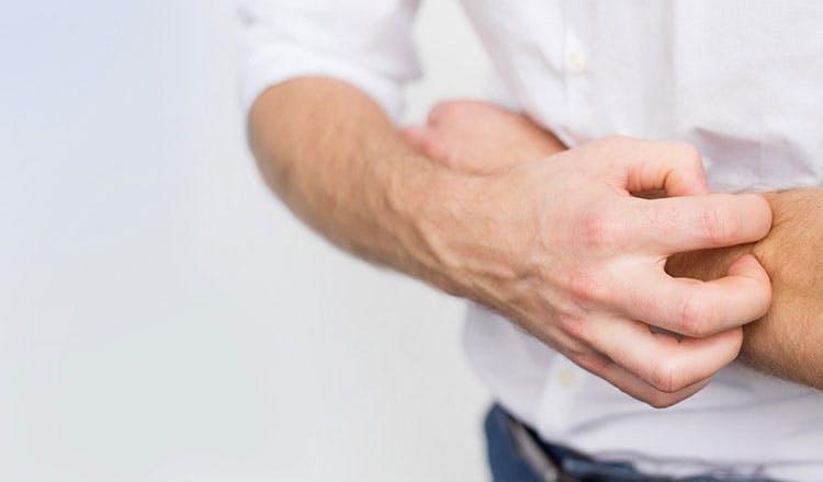 Banner - Dlaczego Twoja skóra swędzi podczas gojenia?