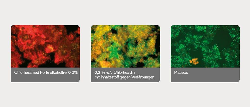 Plaque-Biofilme durch Bildanalyseprogramm bestimmt