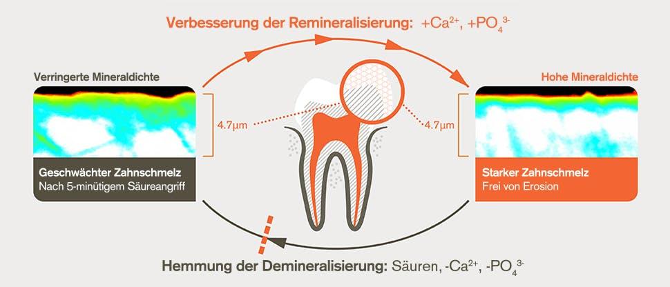 Remineralisierungs- und Demineralisierungs-prozess nach 5-minütigem Säureangriff