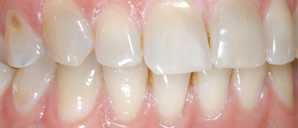 Sichtbarer Zahnschmelzabbau