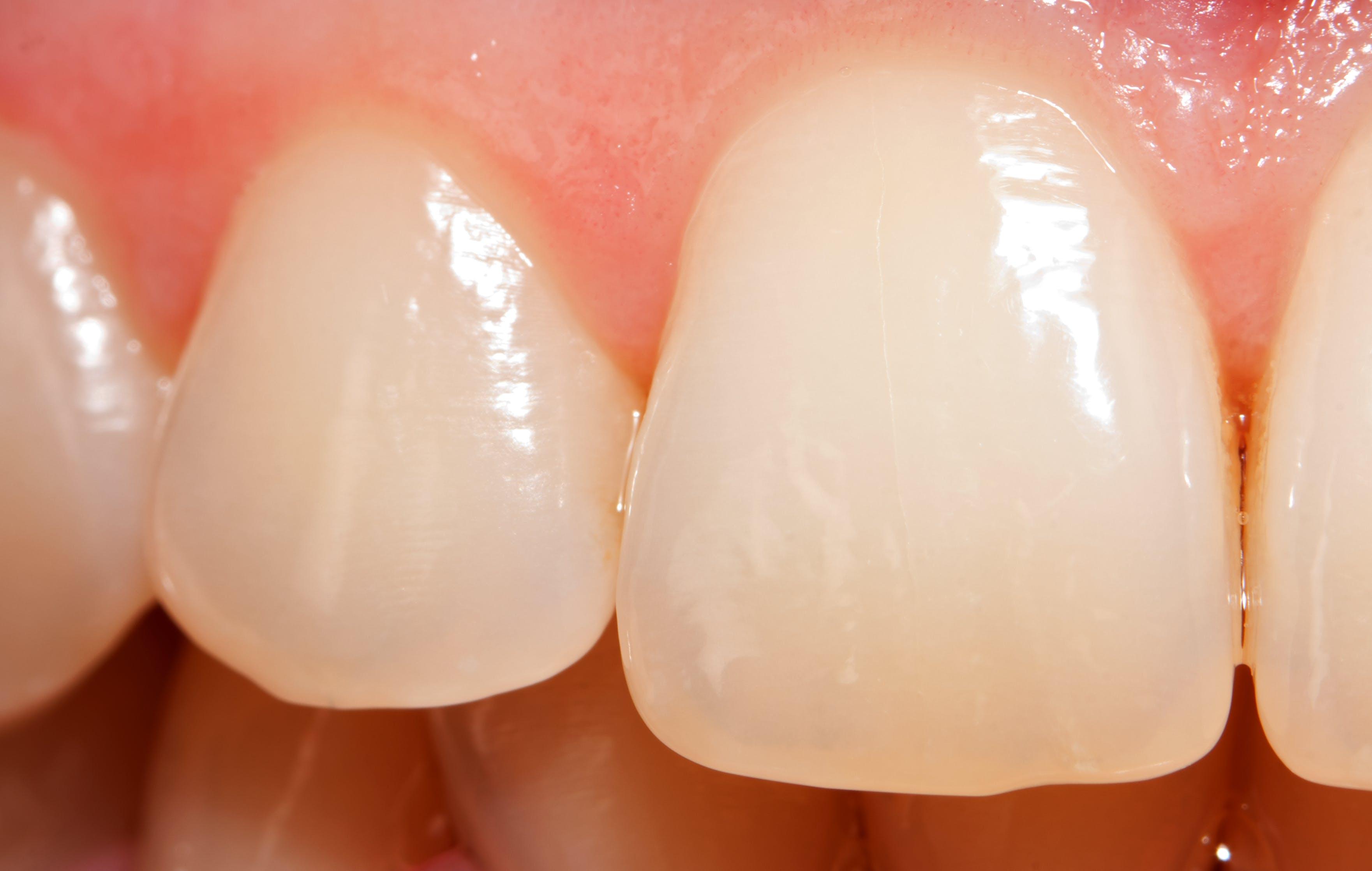 Zähne mit Zahnschmelzabbau