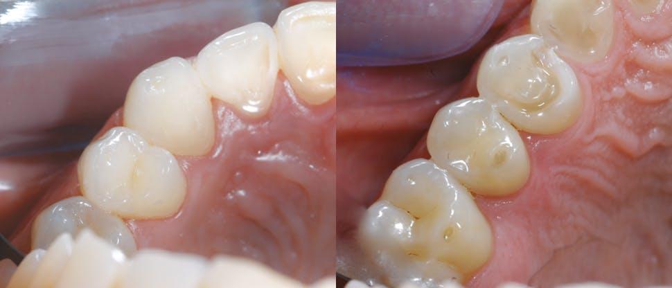 Sonstige Anzeichen von Zahnschmelzabbau