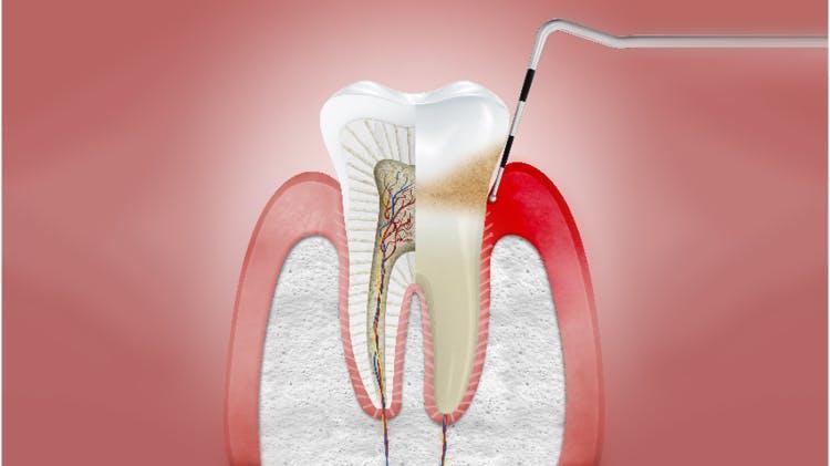 Querschnitt durch Zahnfleisch mit Gingivitis