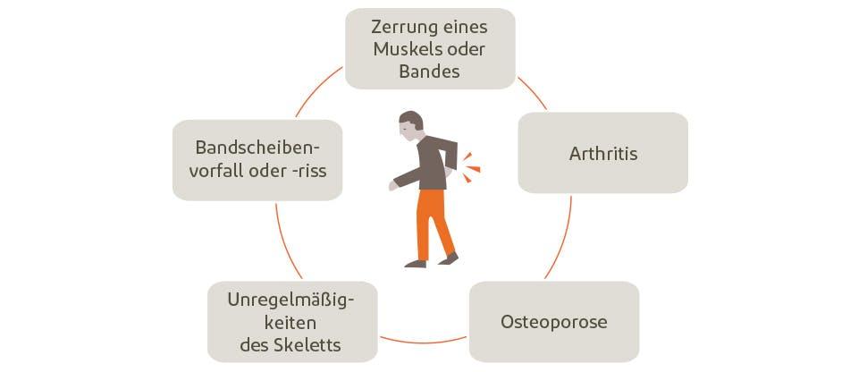 Rückenschmerzen können ganz unterschiedliche Ursachen haben