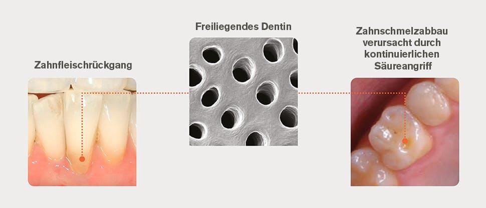 Ursachen für freiliegendes Dentin