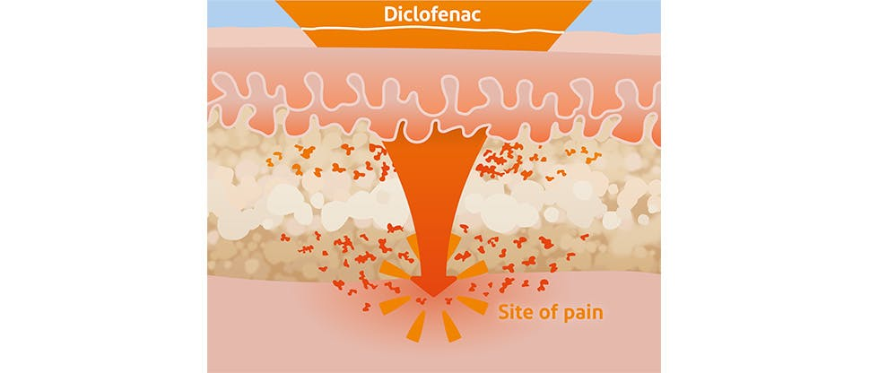 Diagram showing diclofenac reaching site of pain