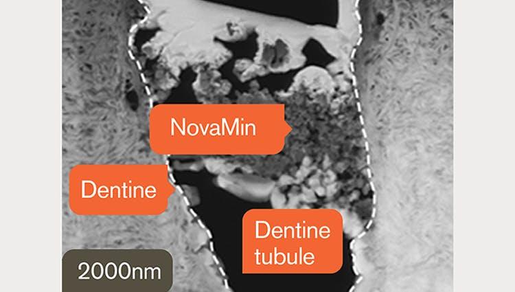 TEM image of dentine at 2000nm