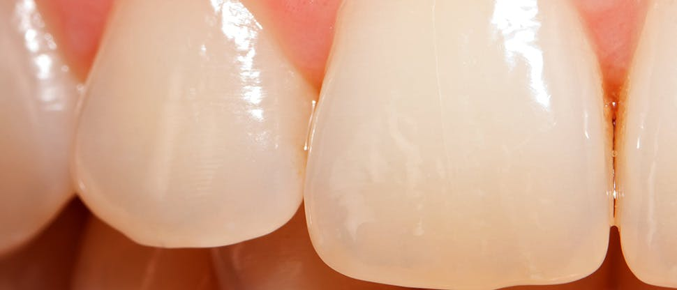 Enamel worn teeth