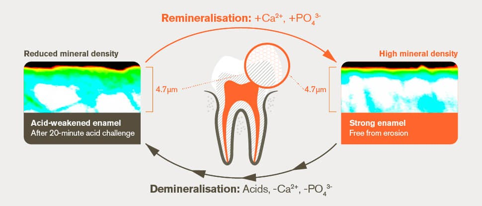 Remineralisation and demineralisation process after 20-minute acid challenge