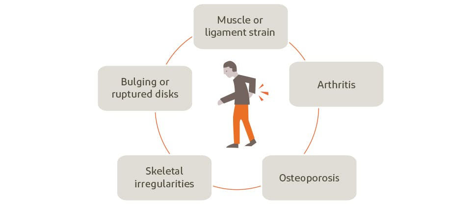 Graphic depicting potential causes of back pain