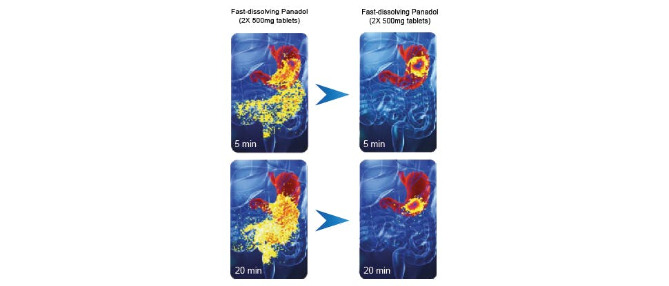 Images showing the rapidity of Panadol disintegration in the stomach compared to standard paracetamol tablets