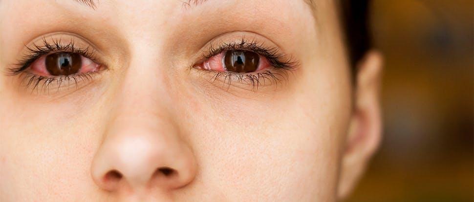 Allergy reaction lifestyle