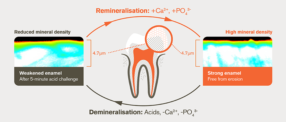 Demineralisation and remineralisation and process after 5-minute acid challenge