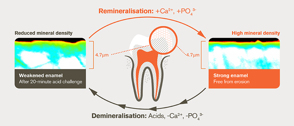 Demineralisation and remineralisation process after 20-minute acid challenge