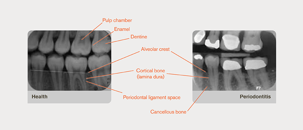 Annotated radiograph