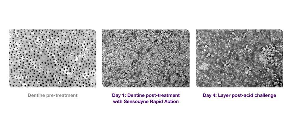SEM images of dentine