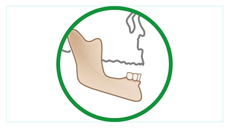 Factors affecting denture performance