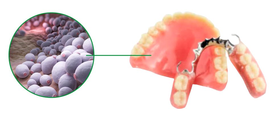 Bacteria on denture