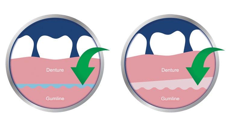Xerostomia can limit denture retention