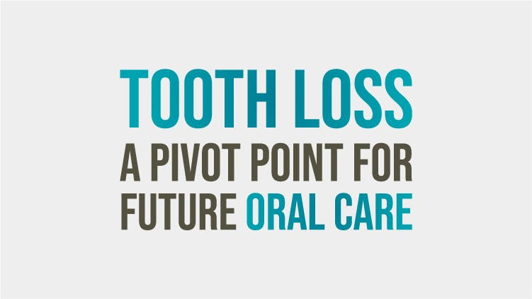 Tooth Loss – A Pivot Point For Future Oral Care