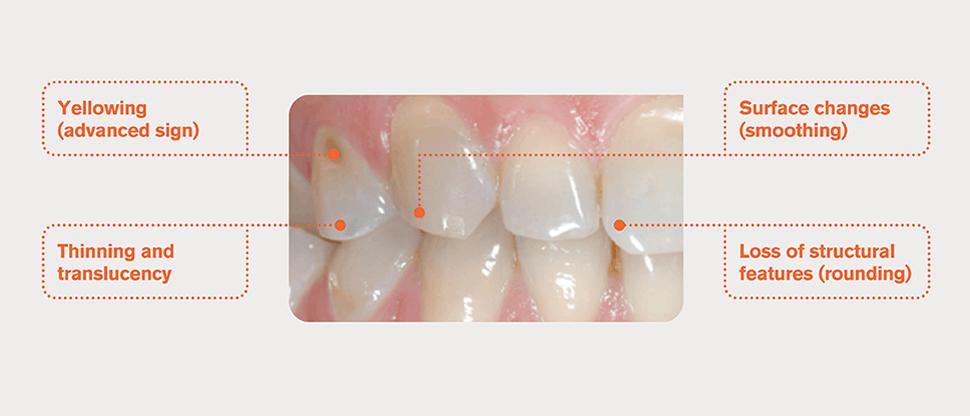 Teeth with worn enamel