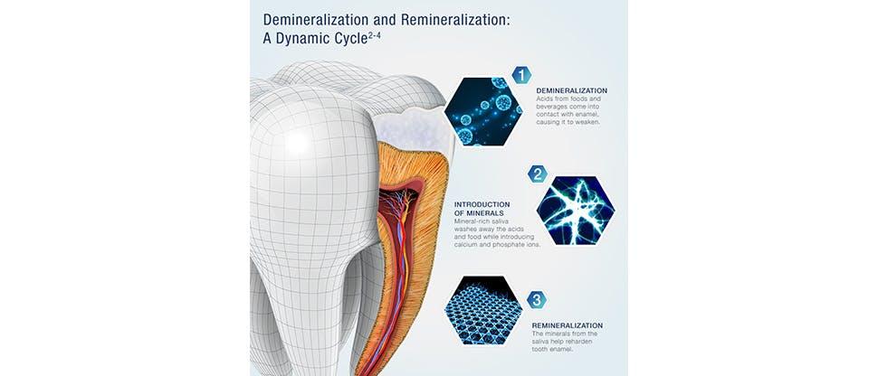 Demineralization-and-Reminerlisation