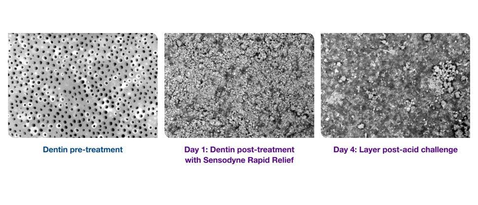 SEM images of dentin
