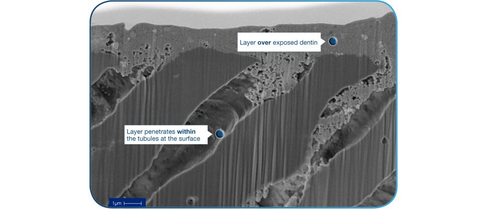 in vitro X section SEM image showing occlusive layer over exposed dentin