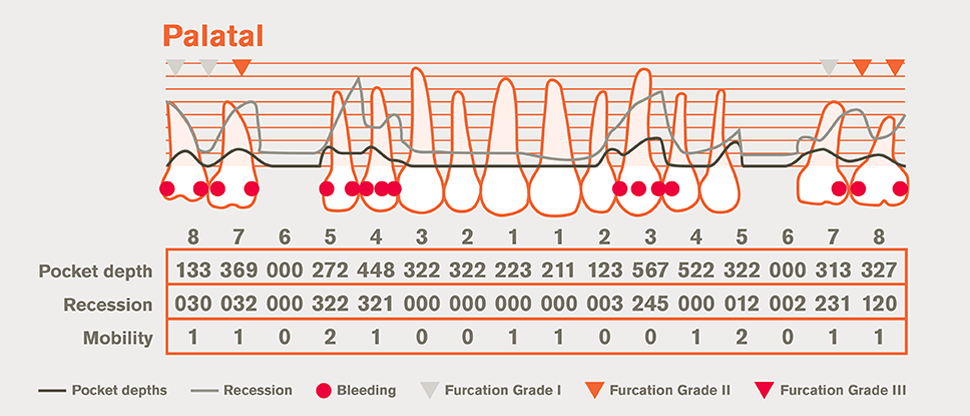 Detail periodontal chart