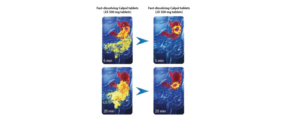 Images showing the rapidity of Calpol Tablets disintegration in the stomach compared to standard paracetamol tablets