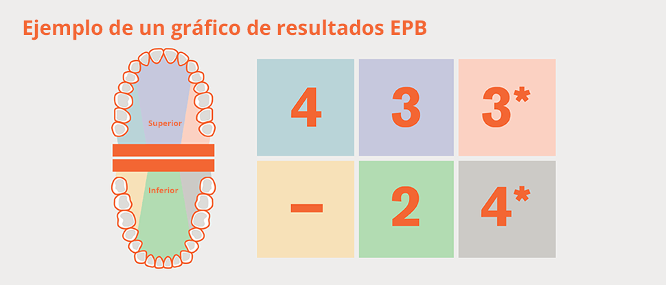 División de la dentición en sextantes del EPB y gráfico de ejemplo