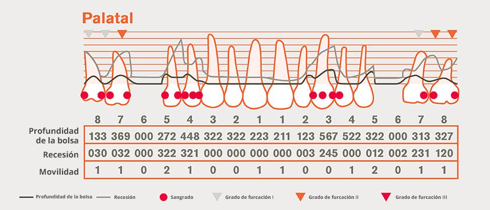 Gráfico periodontal detallado