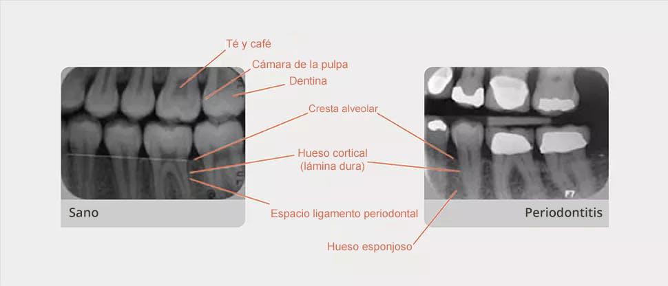 Radiografía comentada