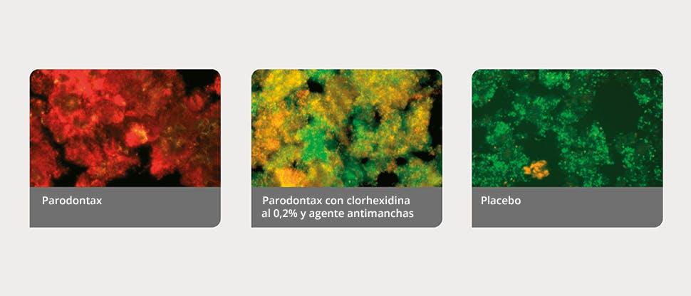 Biopelículas de placa definidas por un programa de análisis de imágenes