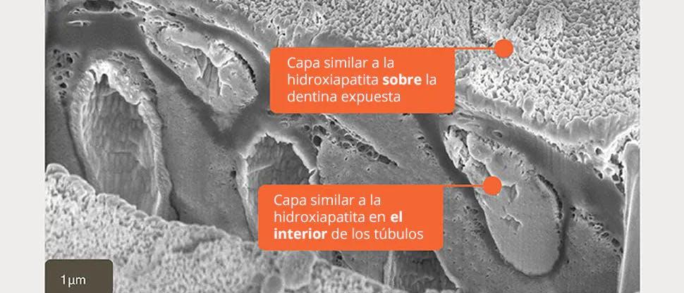 Imagen SEM de una capa similar a la hidroxiapatita