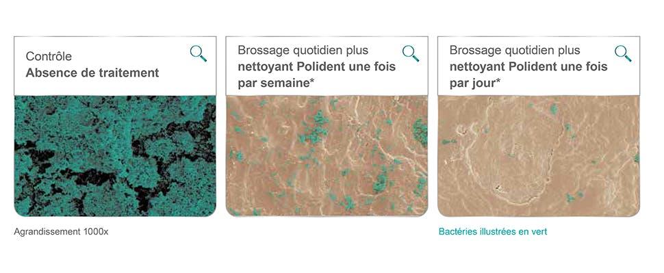 Agrandissement de la surface de la prothèse de 1 000 x