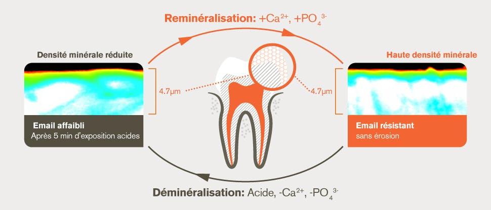 Processus de déminéralisation et de reminéralisation après une attaque acide de 5 minutes