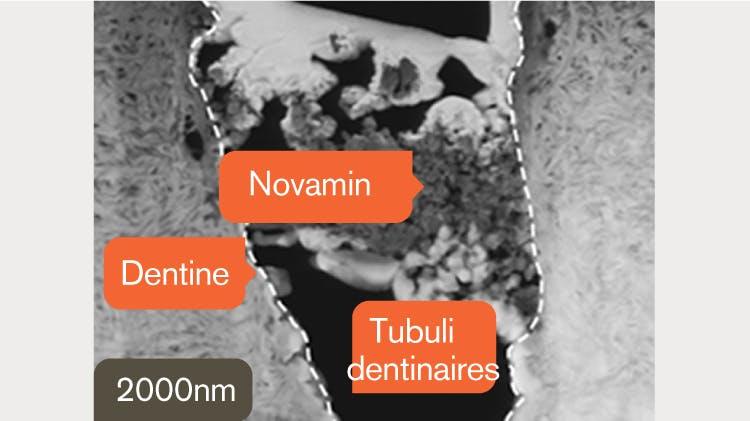 Cliché MET de la dentine à 2 000 nm