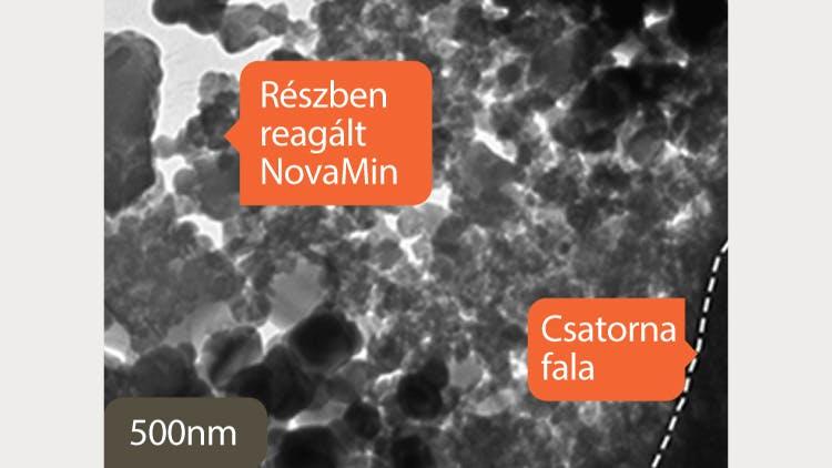Dentinről készült TEM felvétel, 500 nm