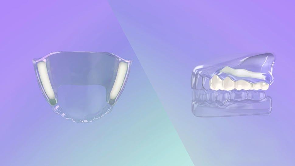 Modalità d'azione dell'adesivo per protesi dentali