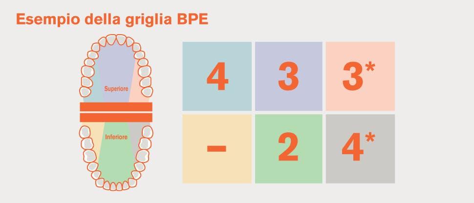 Esempio di divisione della dentatura in sestanti secondo la catalogazione BPE