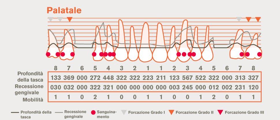 Cartella parodontale dettagliata