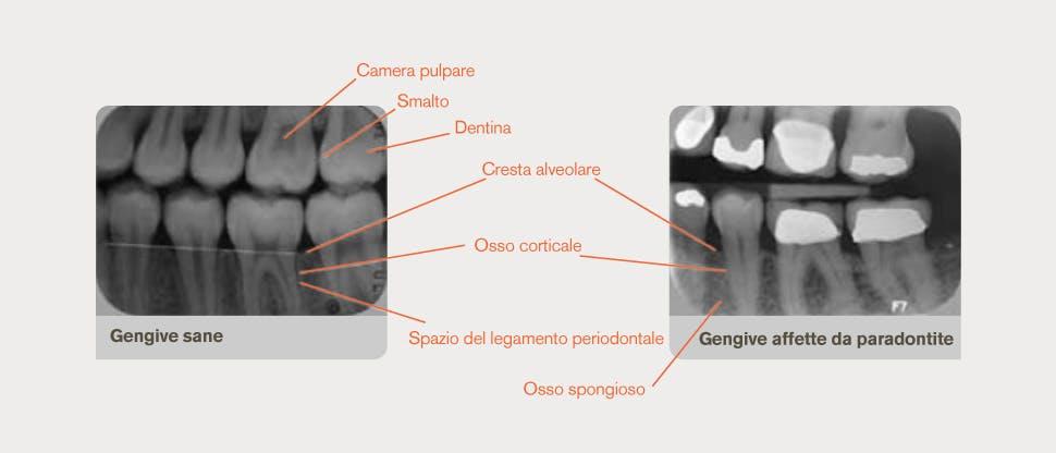 Radiografie commentate